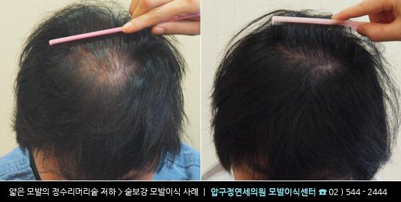 [20대 남자 정수리 탈모] 미녹시딜 5% 사용 3개월 후기